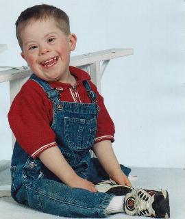 Сегодня в мире каждый шестисотый ребенок рождается с синдромом Дауна (фото с сайта www.einstein-syndrome.com)