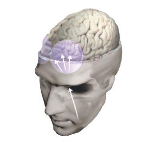 Фронтальная лейкотомия предполагала перерезание волокон, связывающих область бессознательных реакций, где вырабатываются эмоции, с областью коры, где они вызываются в сознании.