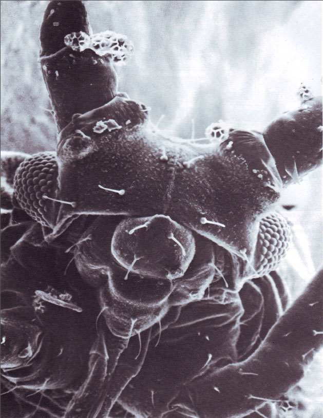 Организмы плевропневмониеподобные фото