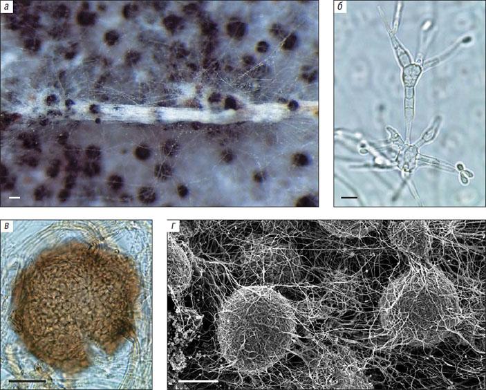 Рис. 4. Микрофотографии Sodiomyces sp. nov («Природа» №5, 2020)