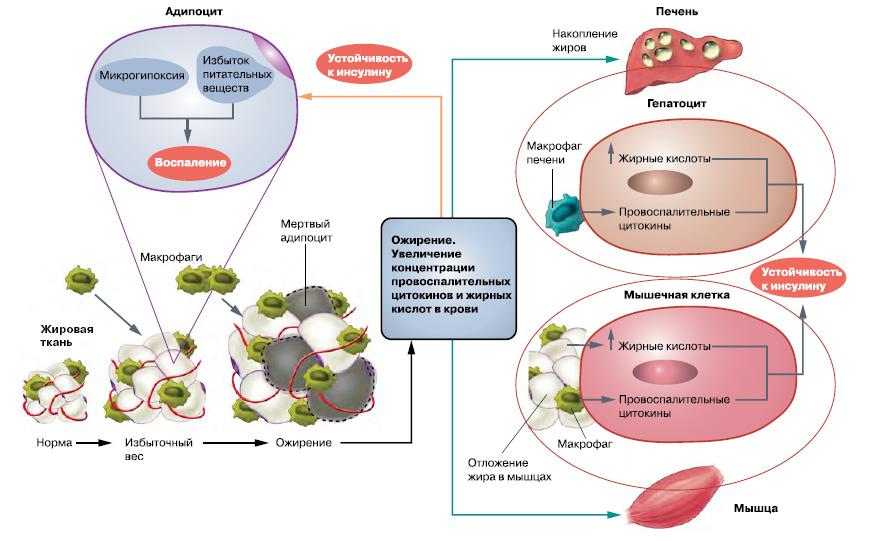 Разные лица инсулиновой резистентности