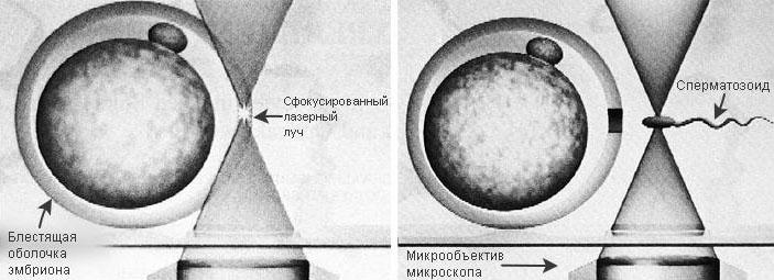Захват эмбриона и сперматозоида оптическим пинцетом («Коммерсантъ Наука» №1, февраль 2017)