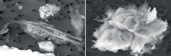 Микроорганизмы обнаруженные в