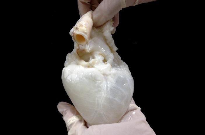 Децеллюляризованное сердце