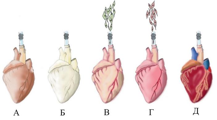 Этапы создания биоискусственного сердца