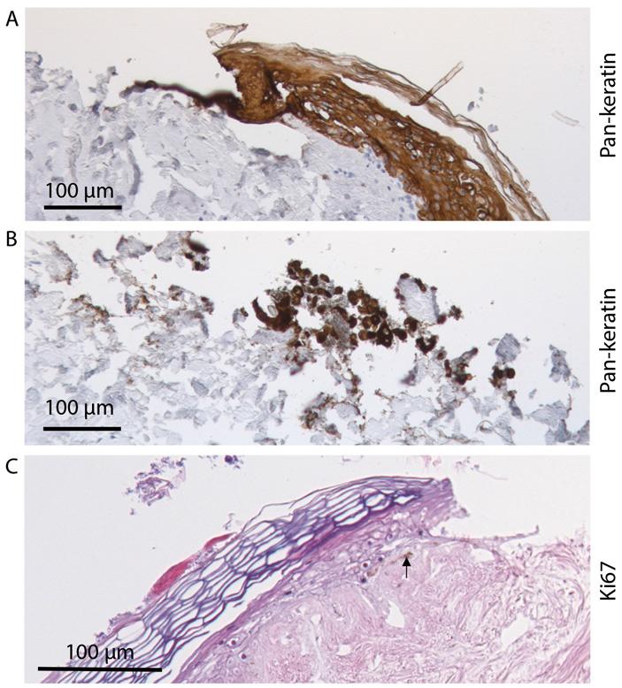 Рис. 4. Заживление раны на человеческой коже, содержащейся в виде дисков на питательной среде