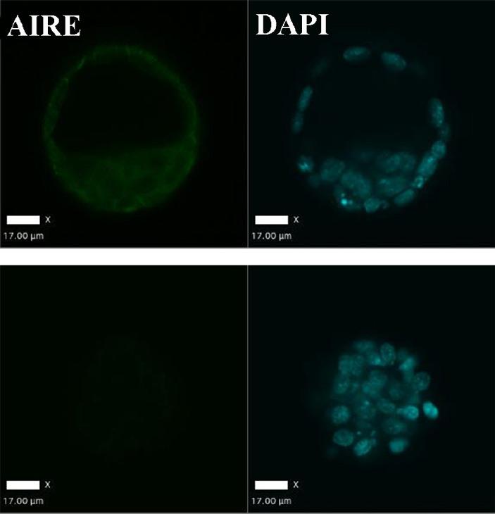 Рис. 5. Здоровый и лишенный функционального белка AIRE эмбрионы мыши