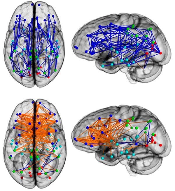 http://elementy.ru/images/news/brain_sex_dimorphism_2_600.jpg
