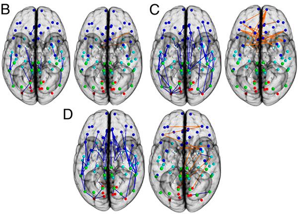 http://elementy.ru/images/news/brain_sex_dimorphism_3_600.jpg