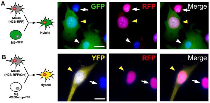 Рис. 1. Слияние клеток опухоли и макрофагов