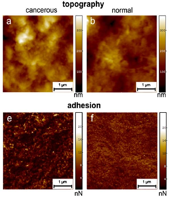 Рис.1. (a),(b)Топография поверхности раковых (cancerous) и нормальных (normal) клеток, полученная при помощи атомно-силового микроскопа. (e),(f)Карта адгезии (adhesion— сцепление) поверхности нормальных и раковых клеток (визуализация данных по распределению силы адгезии иглы атомно-силового микроскопа с каждой точкой поверхности нормальных и раковых клеток). Рисунок из обсуждаемой статьи в Phys.Rev.Lett.