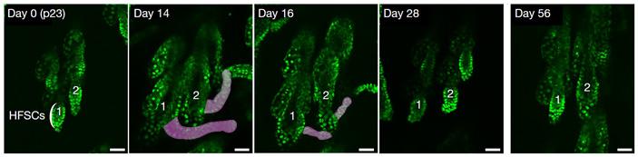 Рис. 2. Экспрессия мутантного β-катенина вызывает сначала аномальный рост волосяных фолликулов, а затем их регрессию