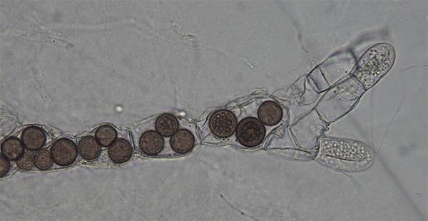 Рис.4. Rozella allomycis (темные круглые клетки) паразитирует в гифах гриба (хитридиомицета) Allomyces. Фото ссайта wikipedia.org