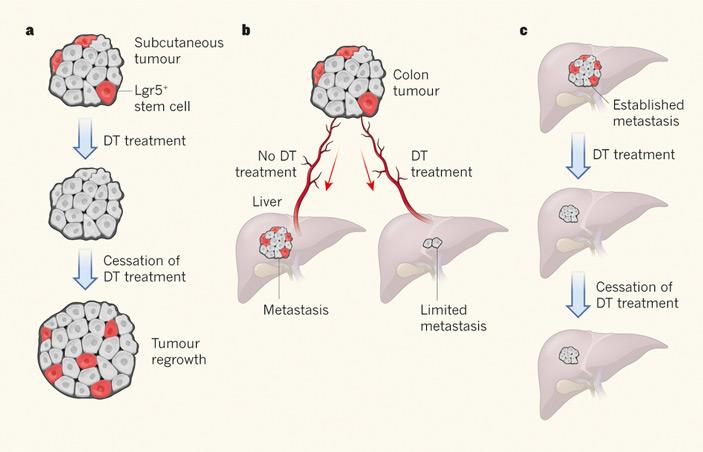 Роль стволовых клеток колоректального рака в развитии первичной опухоли и метастазов