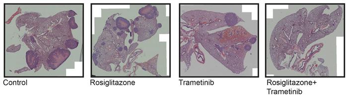 Рис. 3. Гистологические срезы мышиных легких через 4 месяца после ксенотрансплантации