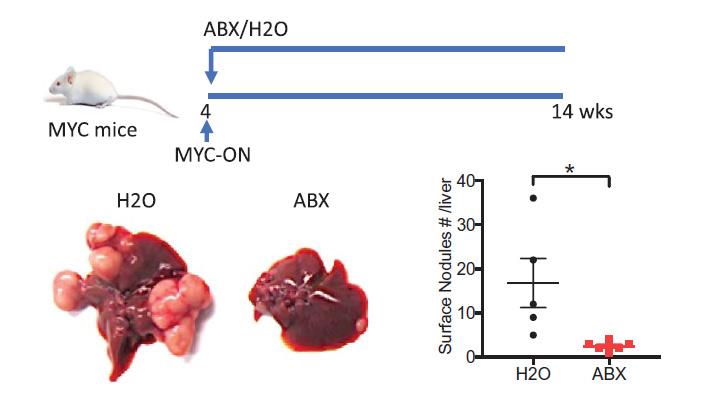 Рис. 2. Подавление бактерий пищеварительного тракта подавляет и развитие рака печени