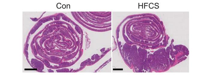 Гистологический срез участка тонкого кишечника
