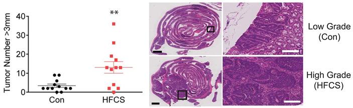 Рис. 2. Количество крупных опухолей