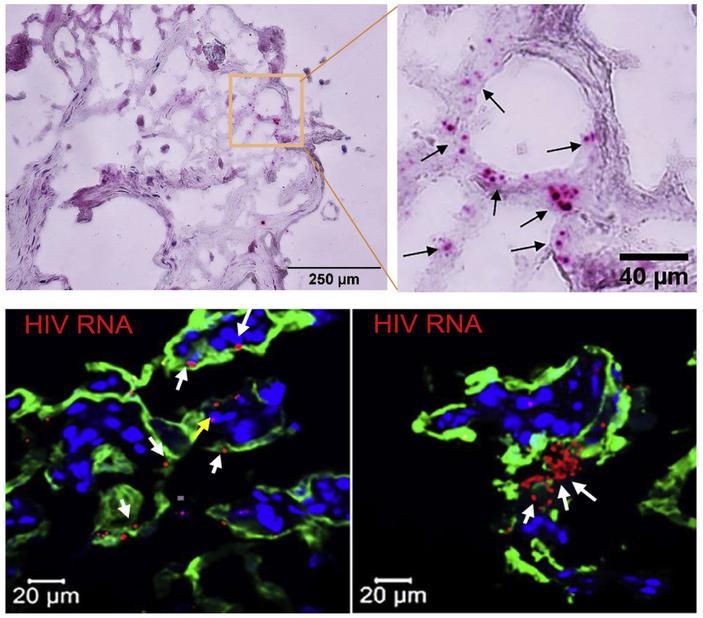 Вирус иммунодефицита человека проникает в плаценту, пользуясь белком эндогенного ретровируса