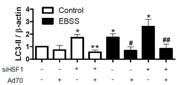 Рис.2. Аутофагия зависит от активности HSP70 и его регулятора– HSF-1