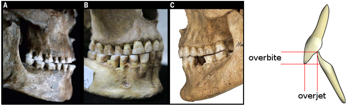 Мягкая пища способствовала распространению губно-зубных согласных