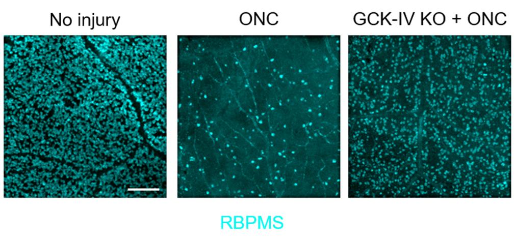 Регенерацию нейронов можно улучшить за счет снижения активности киназ • Новости науки