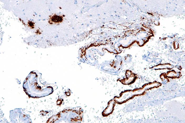 Мышей заразили болезнью Альцгеймера через кишечник