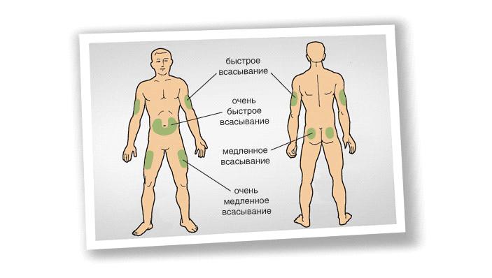 Рис.4. Области для инсулиновых инъекций суказанием скорости всасывания