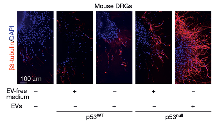 Рис. 3. Результаты культивирования нервных ганглиев мышей в среде