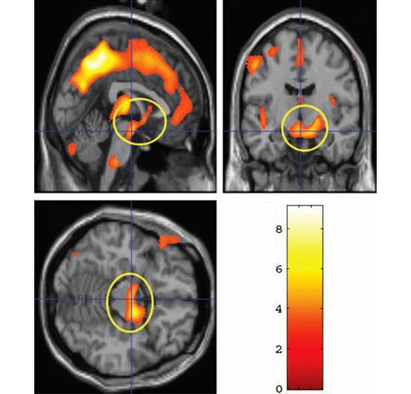 Желтым кружком обведены участки среднего мозга, вкоторых рост объема серого вещества положительно коррелирует со степенью восторженности, выраженной матерью по отношению к своему ребенку через 2–4недели после родов. Разными цветами показана степень статистической достоверности того, что объем серого вещества в данной области действительно увеличился. Изображение из обсуждаемой статьи в Behavioral Neuroscience