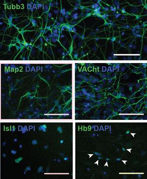 Рис. 1. Моторные (двигательные) нейроны, полученные из стволовых клеток