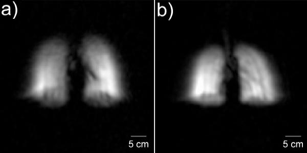 Изображение легких угоризонтально(a) и вертикально(b) расположенных пациентов (фото из обсуждаемой статьи)