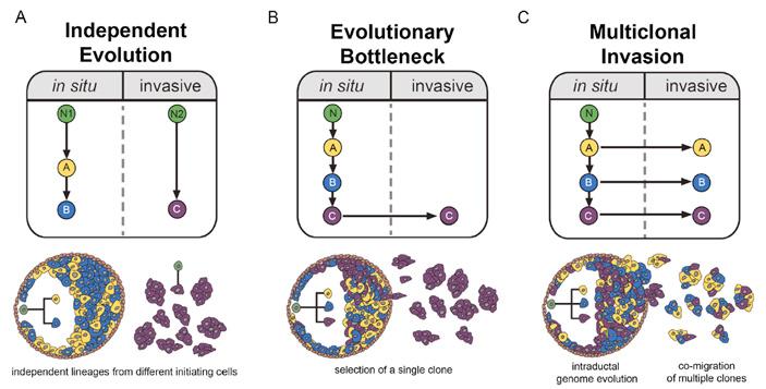 Рис. 2. Три сценария перехода неинвазивной карциномы in situ (DCIS) в инвазивную (IDC) при раке молочной железы