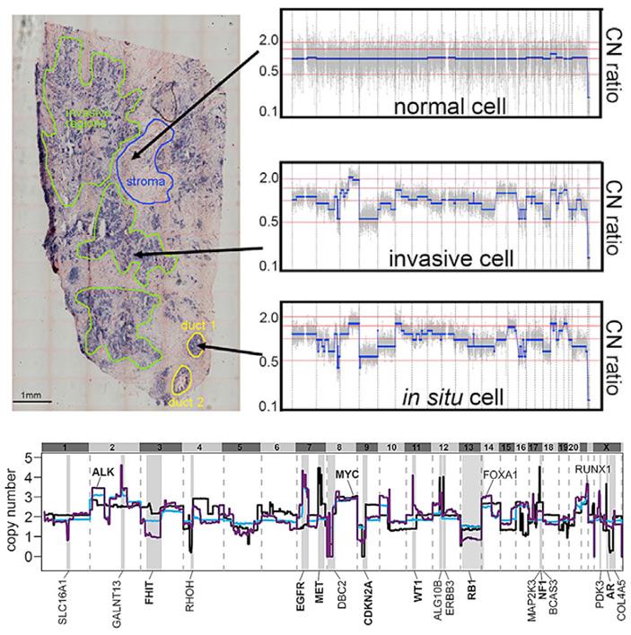 Рис. 4. Пример распределения по геному аномального числа копий различных участков ДНК клеток