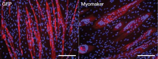 Рис. 3. Сравнение клеточной линии С1С12, зараженной вирусом сгеном миомейкера (справа, Myomaker) и незараженной (слева, GFP)