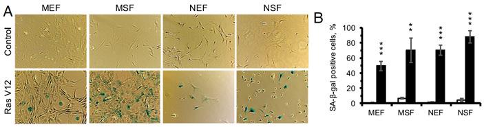 Рис. 4. Результаты β-галактозидазного окрашивания в культуре фибробластов
