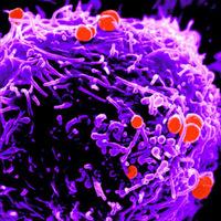a toxoplazma a parazitáról szól hogyan lehet elpusztitani a parazitákat