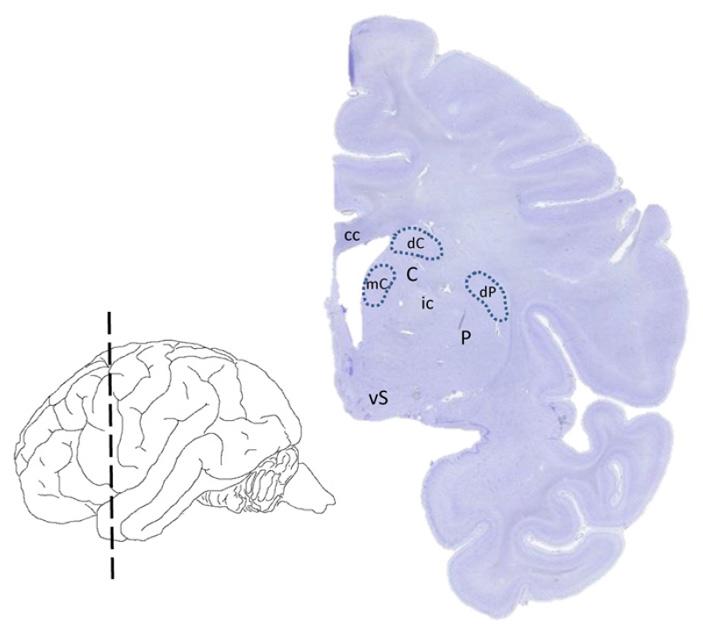 Рис. 2. Исследованные участки дорзального стриатума