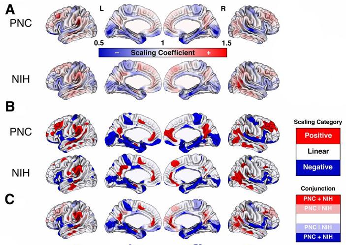 Отделы коры, относительный размер которых растет по мере увеличения мозга