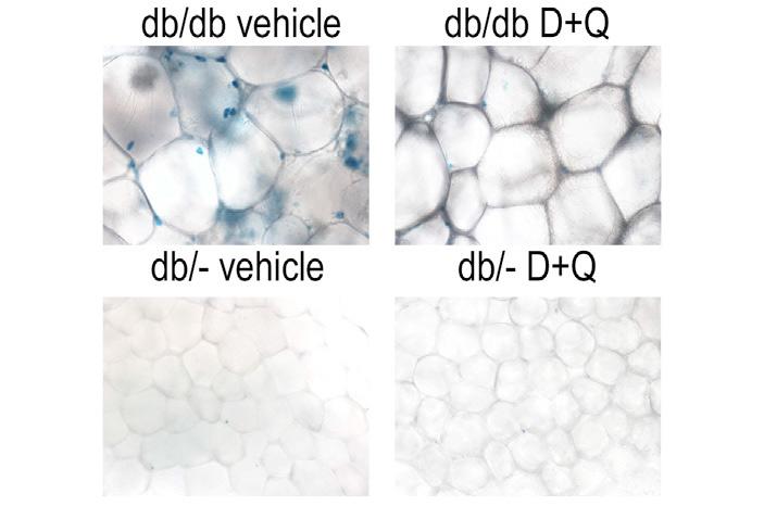 Рис. 4. Сенесцентные клетки в жировой ткани