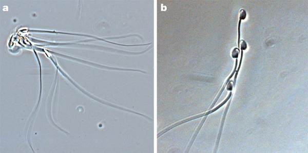 Сперматозоиды и рентген