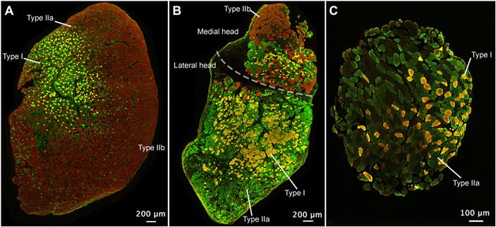 Пример трансформации типа мышечных волокон после пересадки нерва