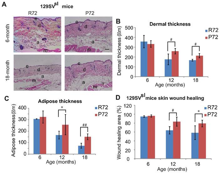 Рис. 4. Толщина кожи и заживление ран как признак старения мышей