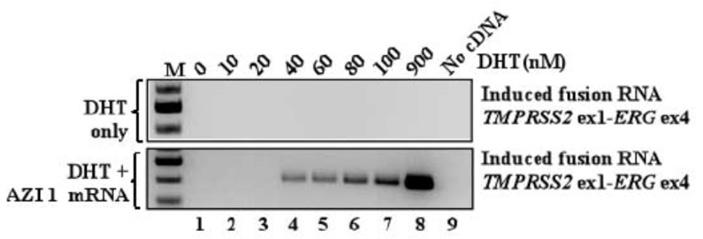Рис. 7. Перестройка на хромосоме 21