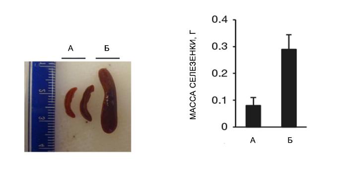 Увеличение размеров и массы селезенки при MPN
