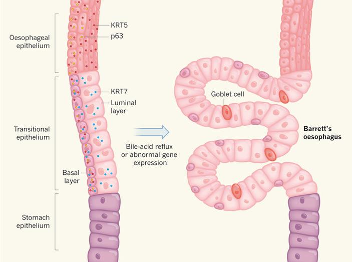 Схематическое изображение эпителия вместе сочленения пищевода и желудка