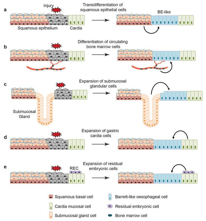 Рис. 2. Гипотезы возникновения пищевода Барретта, предложенные ранее