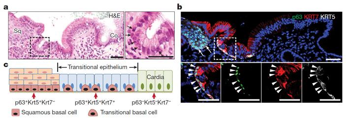 Рис. 5. В пограничной области пищевода и желудка человека локализован специфический переходный эпителий, который разрастается при пищеводе Барретта