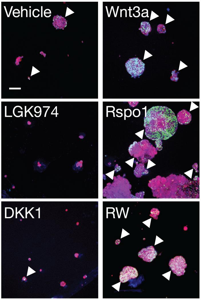 <b>Рис.2.</b> Рост клеток аденокарциномы легких стимулируется лиганд-зависимым сигнальным путем Wnt