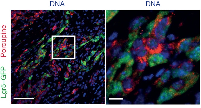 <b>Рис.5.</b> В опухоли Lgr5<sup>+</sup> клетки (меченые зеленым флюоресцирующим белком) обнаруживаются втесном контакте спродуцентами поркупина, выявленными антителами, мечеными красным флюоресцирующим красителем
